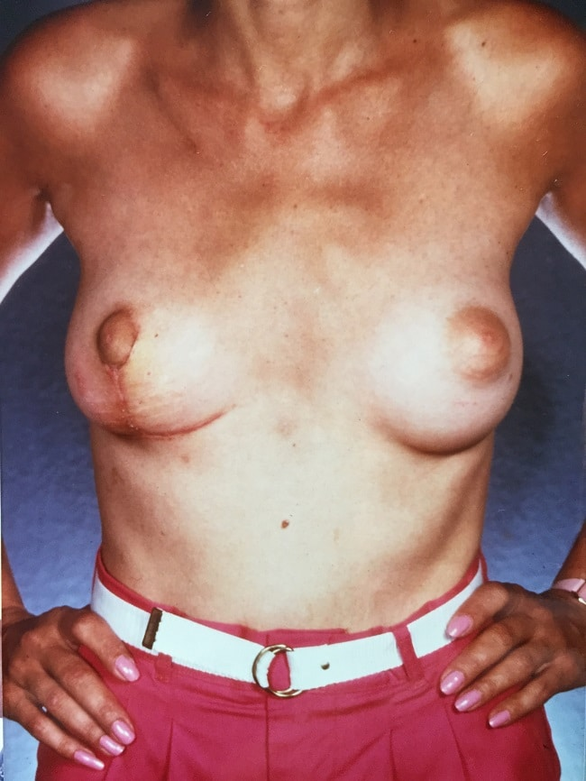 asymmetric breast reconstruction patient 1 after 2