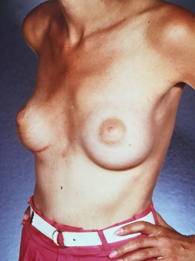 asymmetric breast reconstruction patient 1 after 3