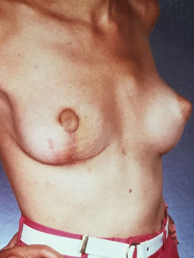 asymmetric breast reconstruction patient 1 after 4 cropped