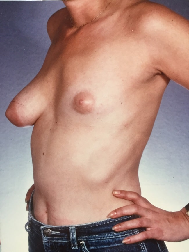 asymmetric breast reconstruction patient 1 before 2