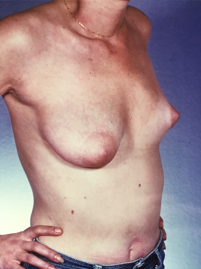 asymmetric breast reconstruction patient 1 before 3