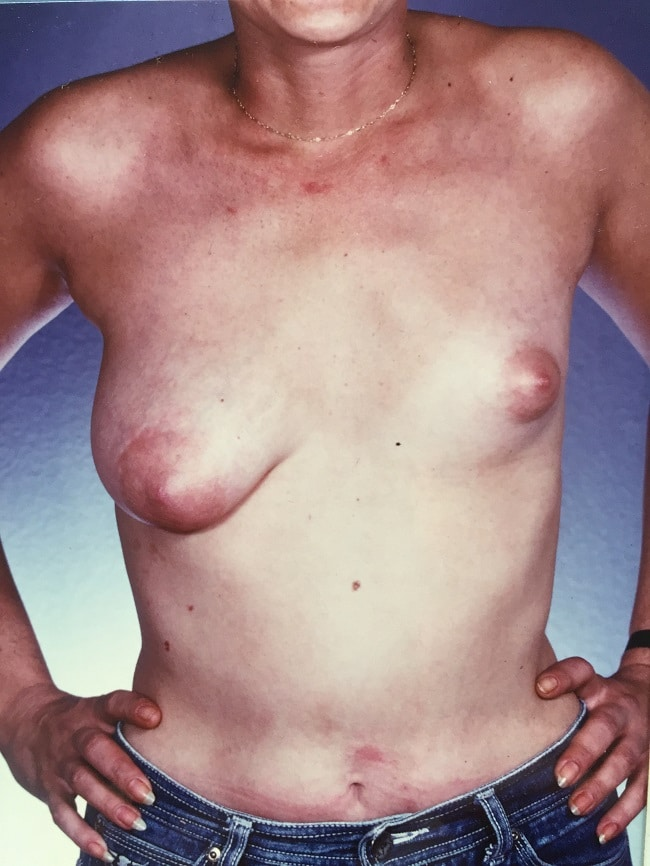 asymmetric breast reconstruction patient 1 before front