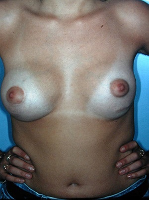 asymmetric breasts mastopexy right augmentation left patient 1 after cropped