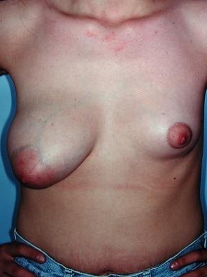 asymmetric breasts mastopexy right augmentation left patient 1 before 1 cropped