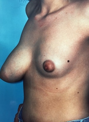 asymmetric breasts mastopexy right augmentation left patient 1 before side view cropped