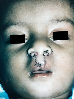 bilateral cleft lip patient 1 after front