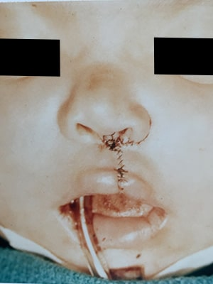 cleft lip unilateral patient 1 after front