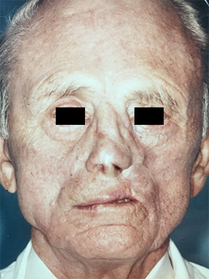 nasal reconstruction patient 1 after front