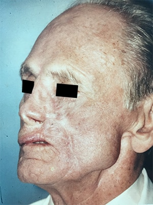 nasal reconstruction patient 1 after left