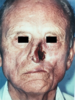 nasal reconstruction patient 1 before front