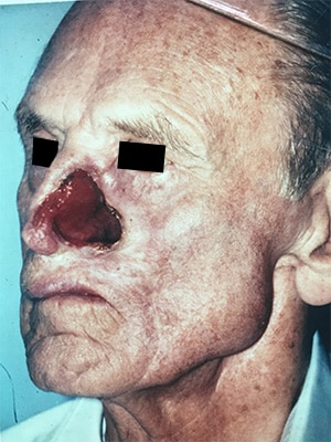 nasal reconstruction patient 1 before left