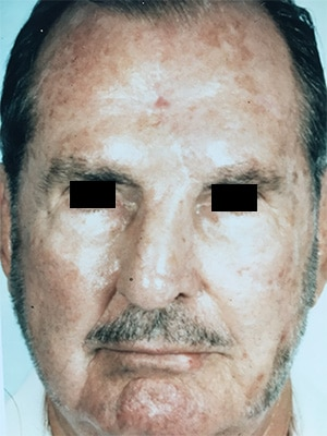 nasal reconstruction patient 3 after