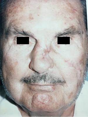nasal reconstruction patient 3 before