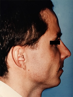 rhinoplasty patient 2 after right