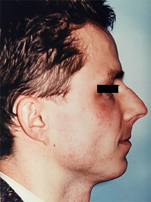 rhinoplasty patient 2 before right