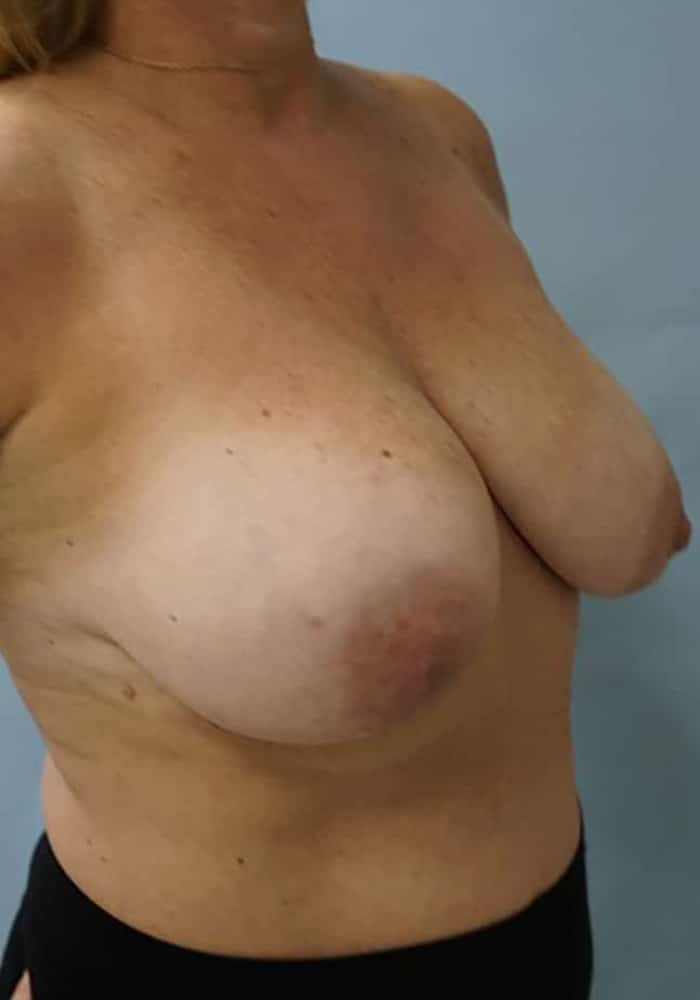 Breast Lift – Case 1