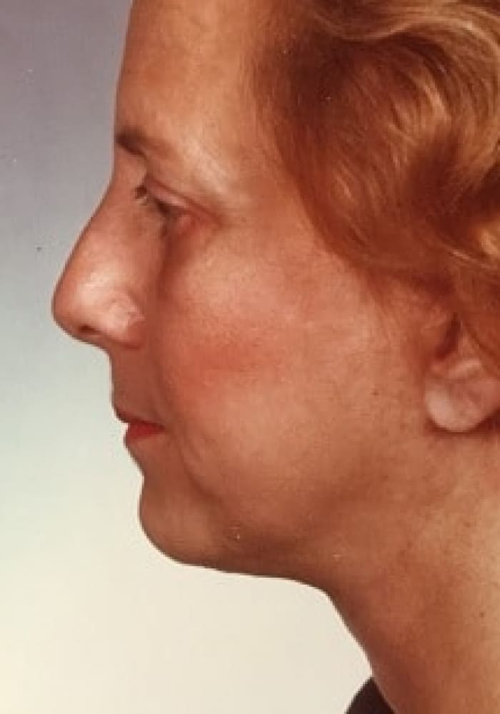 Blepharoplasty & Facelift- Case 1