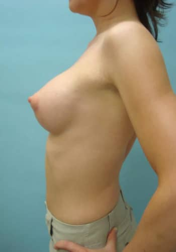 Breast Augmentation – Case 1