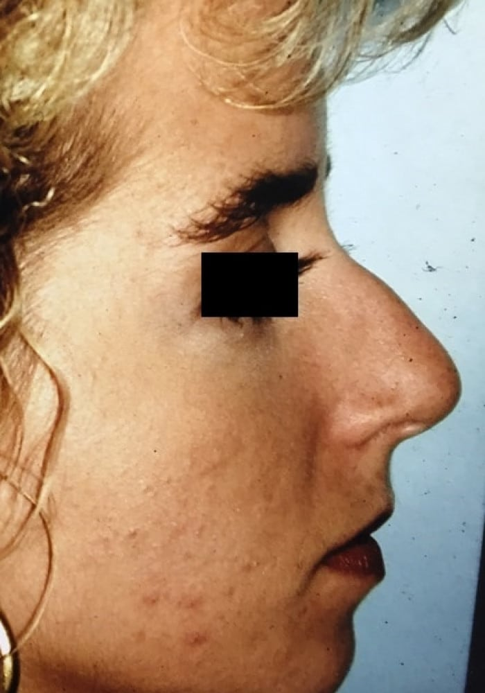 Rhinoplasty – Case 1