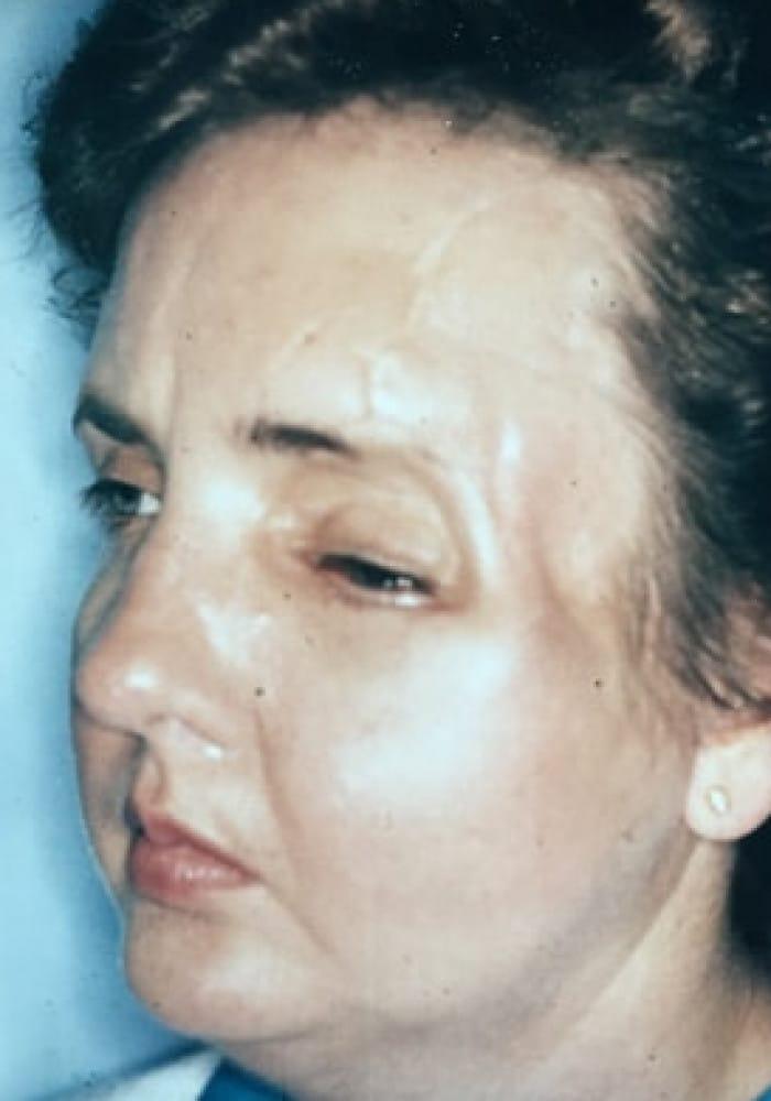 Cranio Orbital Facial Fracture – Case 1