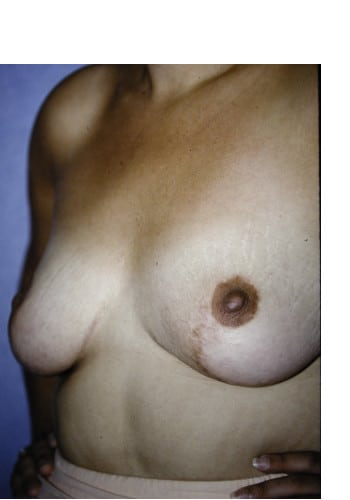 Asymmetric Breasts