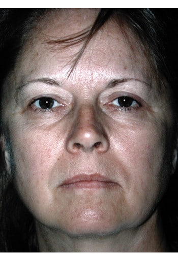 Facelift, Blepharoplasty, Browlift