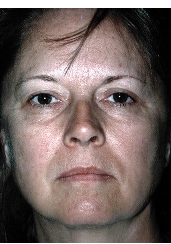 Facelift, Blepharoplasty, Browlift