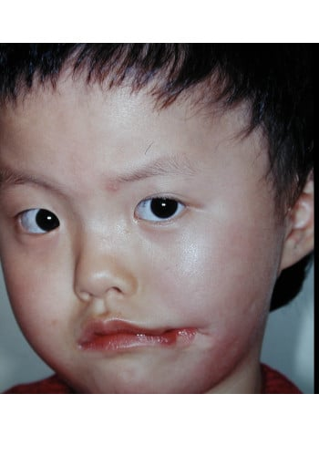 Facial Cleft Reconstruction