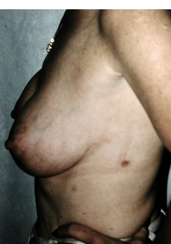 Mastopexy with Augmentation