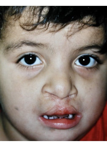 Bilateral Cleft Lip