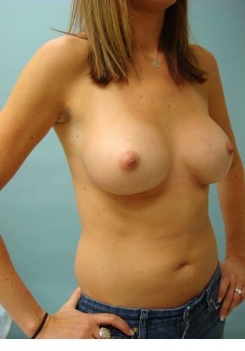 Breast Augmentation-Revision