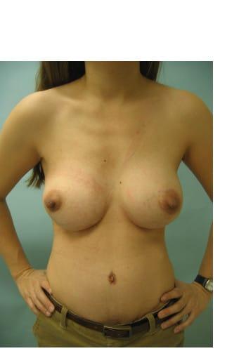 Abdominoplasty, Breast Augmentation