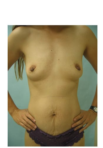 Abdominoplasty, Breast Augmentation