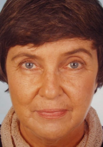 Facelift and Blepharoplasty