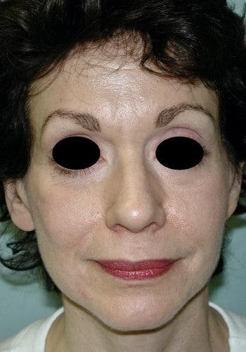 Facelift, Blepharoplasty