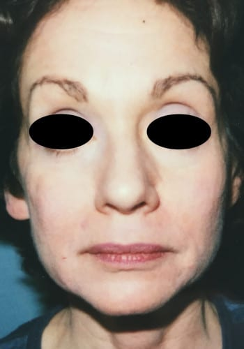 Facelift, Blepharoplasty