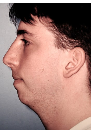 Genioplasty