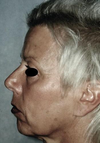 Browlift, Blepharoplasty, Facelift