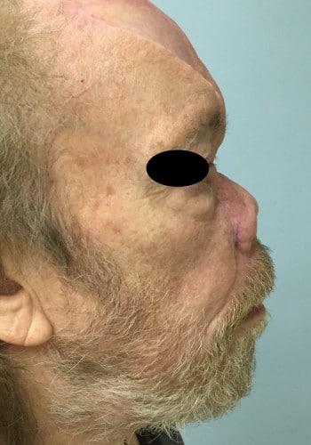Nasal Reconstruction
