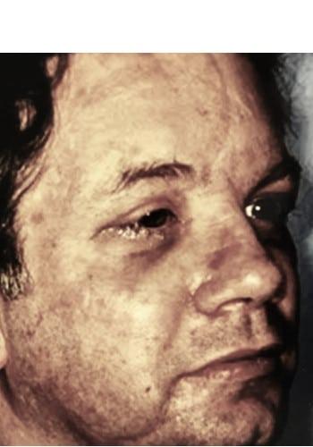 Facial Fracture