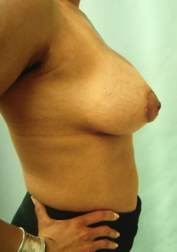 Mastopexy, Breast Augmentation