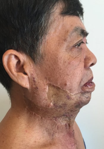 Venous Malformation