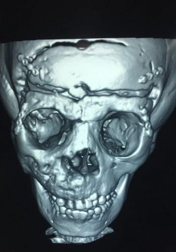 Craniofacial Tumor