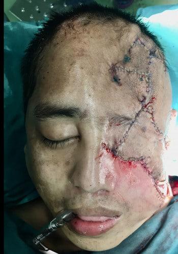 Craniofacial Tumors