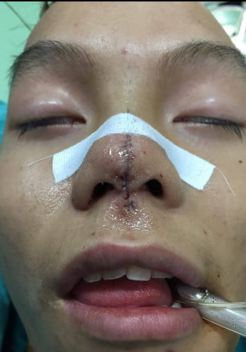 Facial Cleft