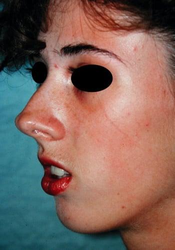 Maxillofacial